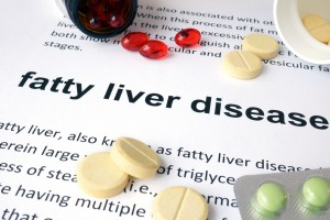 Weight Loss Surgery and Fatty Liver Disease