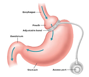 Laparoscopic Adjustable Gastric Band Surgery